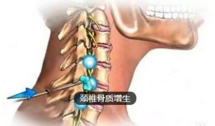 颈椎骨质增生